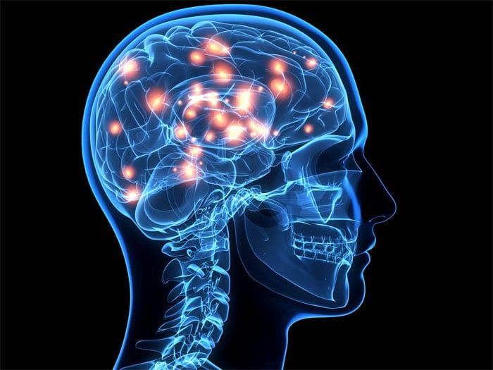 תיקון המוח